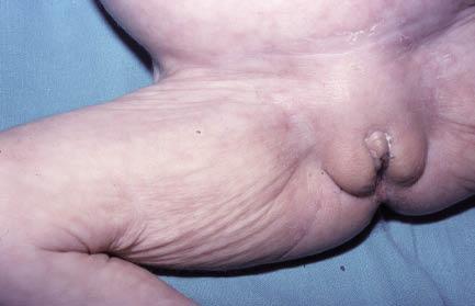 Figura 13. Signo del pliegue en la desnutrición intrauterina.