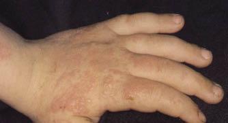 El doctor simonchini el tratamiento de la psoriasis