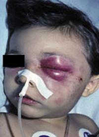 Figura 8. Celulitis orbitaria preseptal estafilocócica secundaria a una herida en la mejilla.