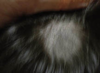Figura 3. Tinea capitis, forma tonsurante, variedad tricofítica.