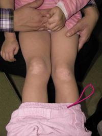 Figura 105. Dermatitis por fricción.