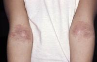 Figura 106. Dermatitis atópica.