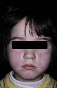 Figura 107. Eritema infeccioso.