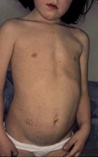 Figura 118. Pitiriasis rosada.