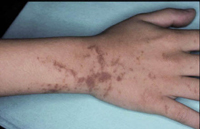 Figura 15. Pigmentación postinflamatoria (dermatitis ampollosa de los prados).