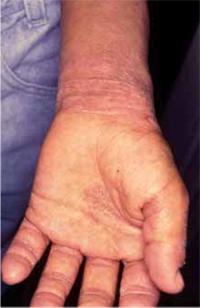 Figura 43. Liquenificación o neurodermitis.