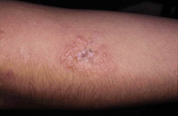 Figura 54. Dermatitis herpetiforme.
