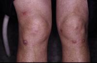 Figura 60. Prúrigo-estrófulo o culicosis.