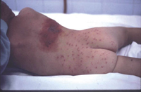 Figura 62. Herpes zoster.