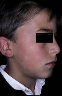 Figura 6. Pitiriasis alba faciei.