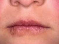 Figura 87. Queilitis en dermatitis atópica.