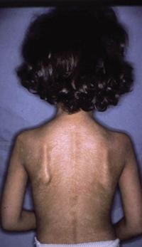 Figura 94. Esclerodermia asociada al síndrome tóxico por aceite de colza adulterado.