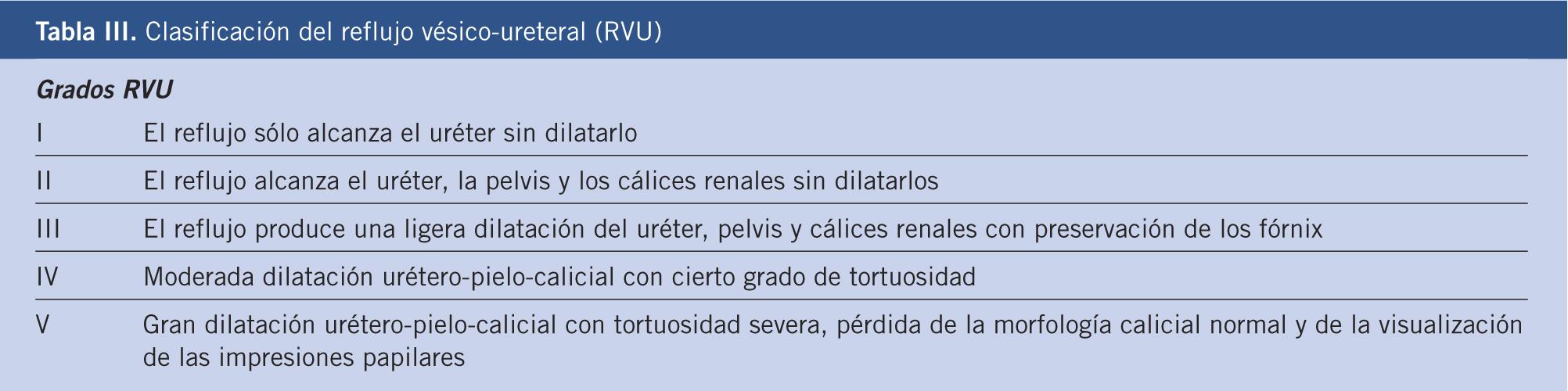 hidronefrosis con obstrucción del cálculo renal y ureteral