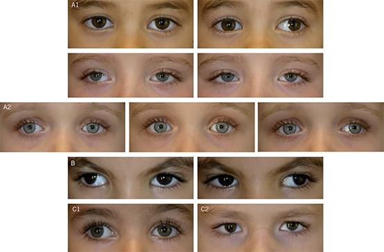 ¿Puede una infección sinusal darle ojos rojos?