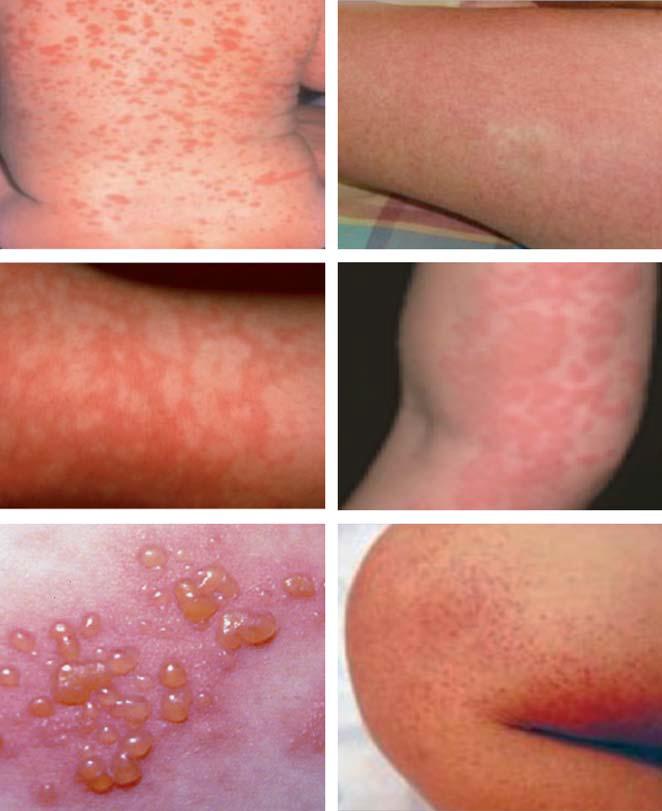 enfermedades infantiles con erupciones cutaneas