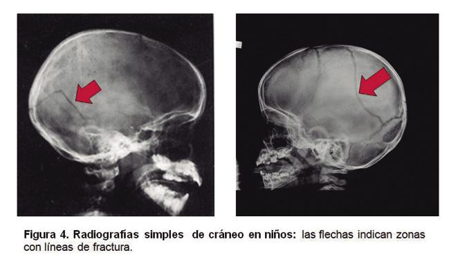 Repetir la tomografía computarizada lesión traumática de la cabeza