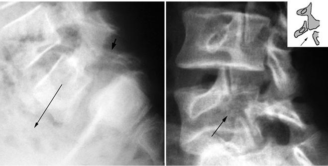 El ejercicio la hernia sheynogo del departamento de la columna vertebral del vídeo