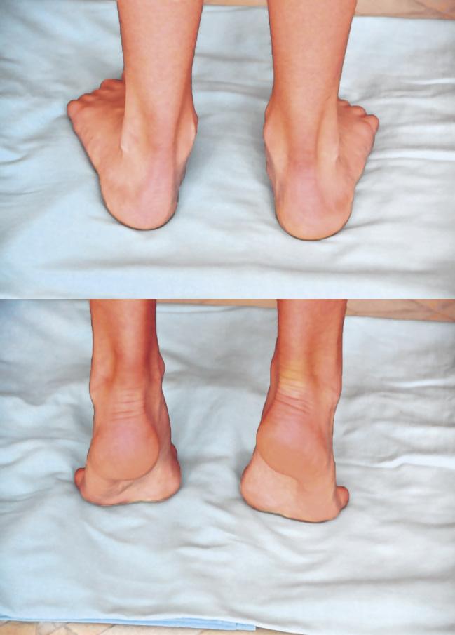 El pie normal y su patología infantojuvenil más prevalente