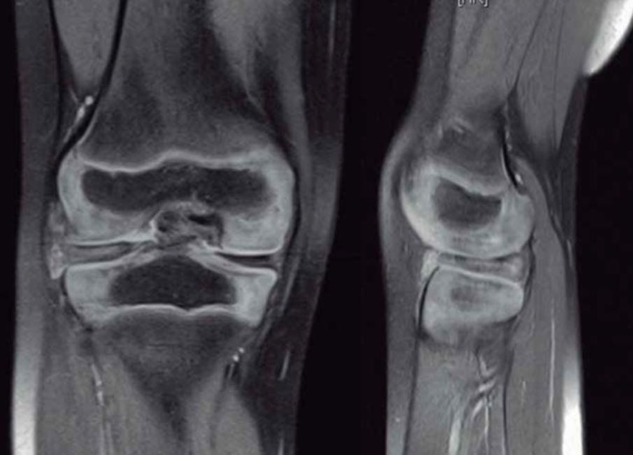 como mejorar la artritis