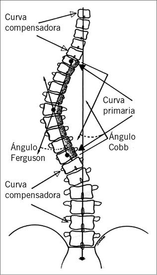 Deformidades de la columna vertebral - PDF