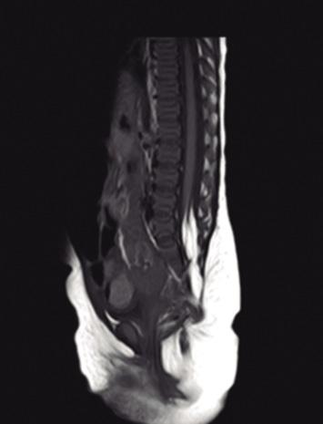 El Disrafismo Espinal Oculto Medical definition of filum terminale: el disrafismo espinal oculto