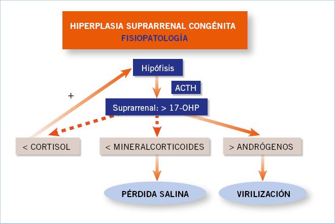 ¿Pueden los glucocorticoides causar hipertensión fisiopatológica?