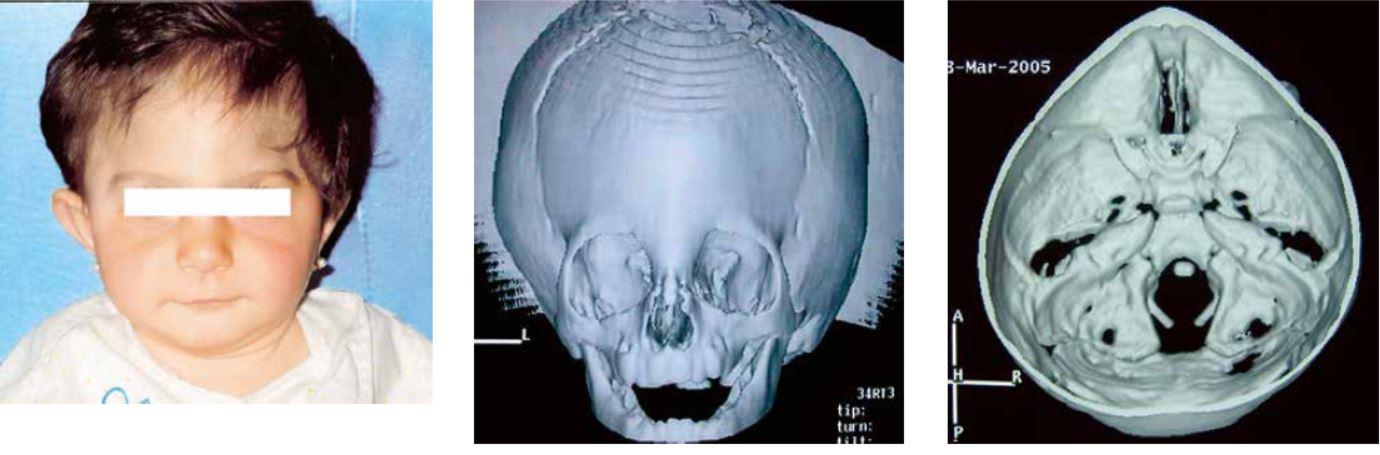 Presión en la base del cráneo lado izquierdo