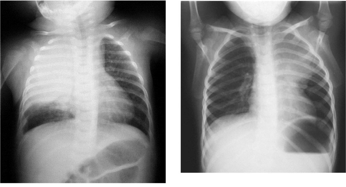 tuberculosis ganglionar niños pdf