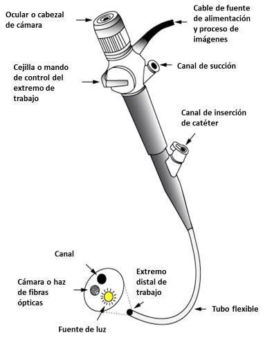 Endoscopia de la vía aérea
