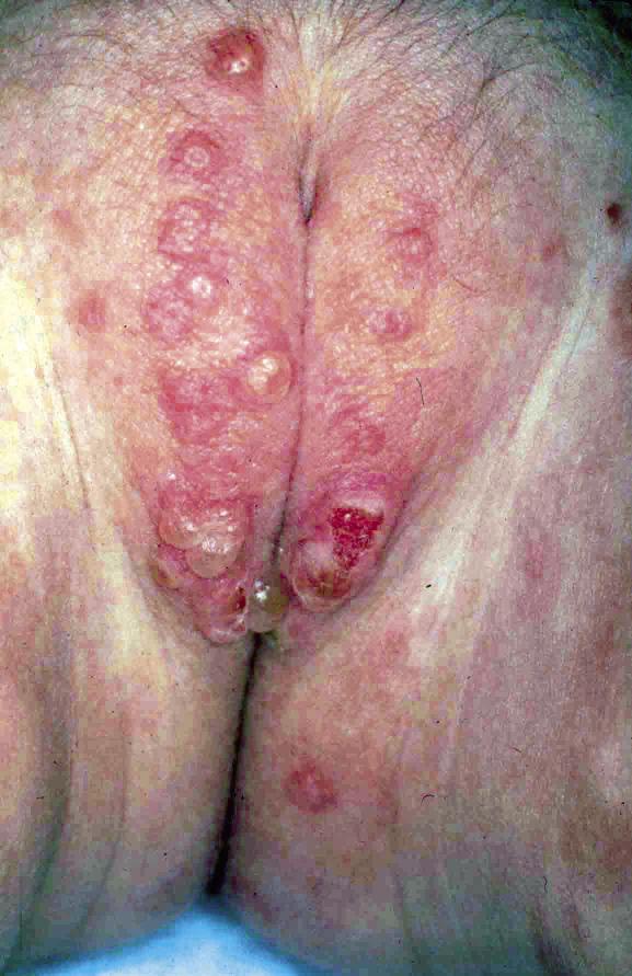 Que tal la forma pustular de la psoriasis