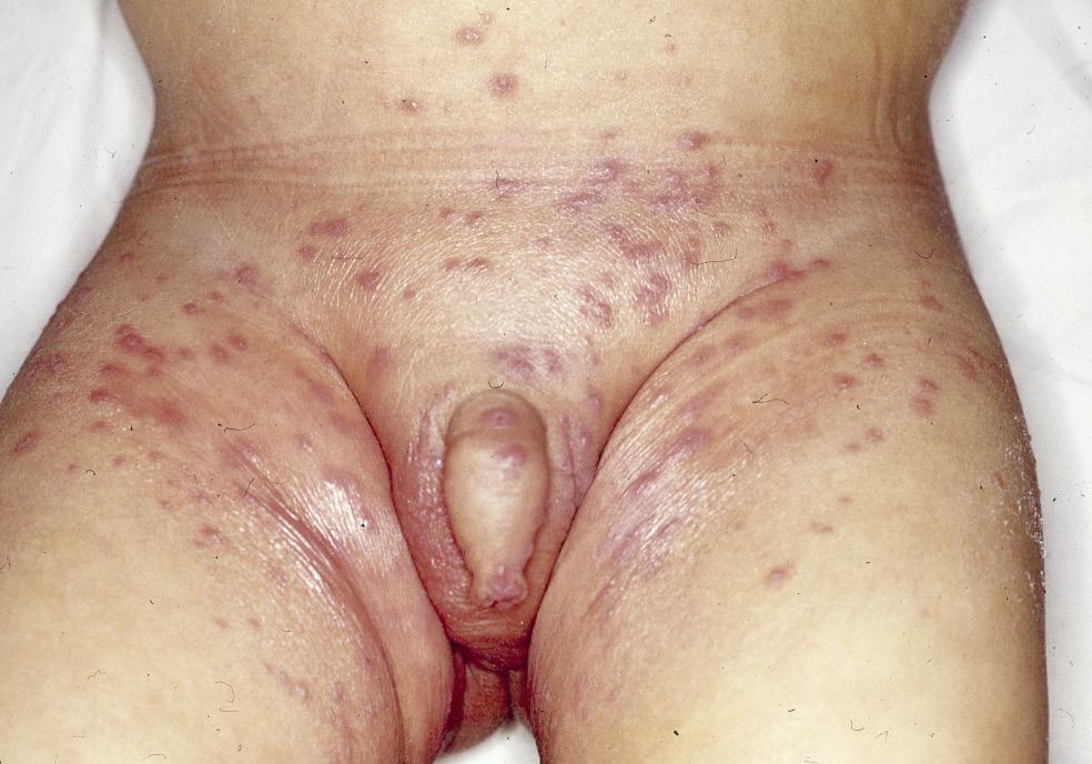 La crema de la psoriasis o la dermatitis