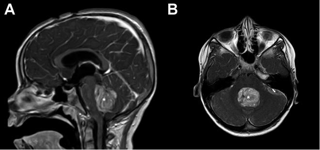 Hallazgos benignos de la hipertensión intracraneal por resonancia magnética