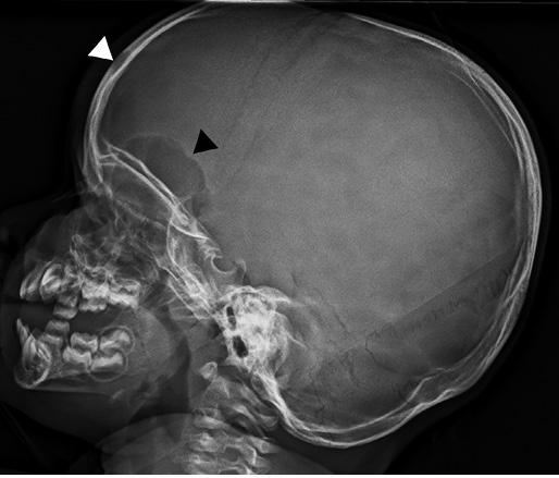 Radiografía del cráneo del niño