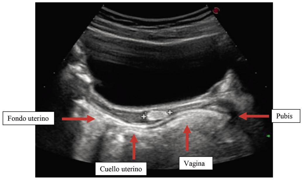 Imagen en Pediatría Clínica. Haz tu diagnósticoSangrado vaginal ...