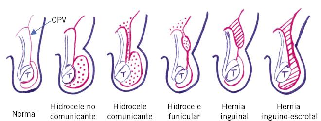Criptorquidia y patología testículo-escrotal en la edad pediátrica